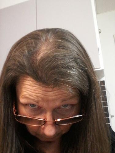 priorin för håret